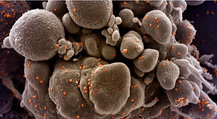COVID-19: ¿se acerca ya la segunda ola de coronavirus?